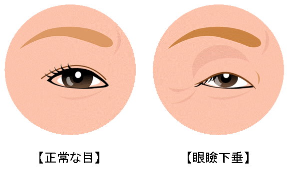 眼瞼下垂症の原因