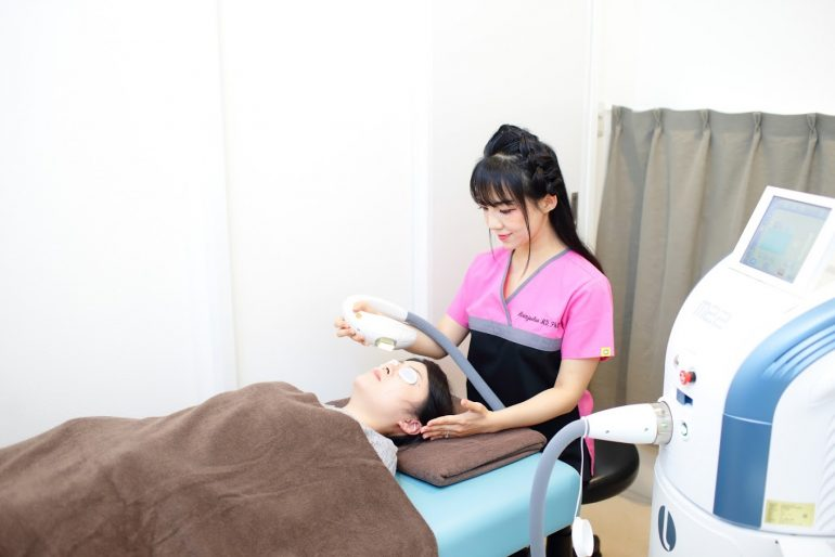 ニキビのIPL治療