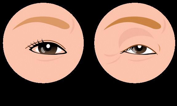 眼瞼下垂とは